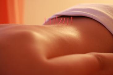 Rücken mit Akupunkturnadeln